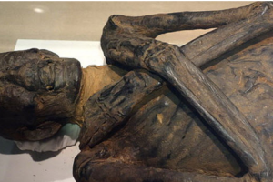 Top 10 Things You Never Knew About Corpse Medicine